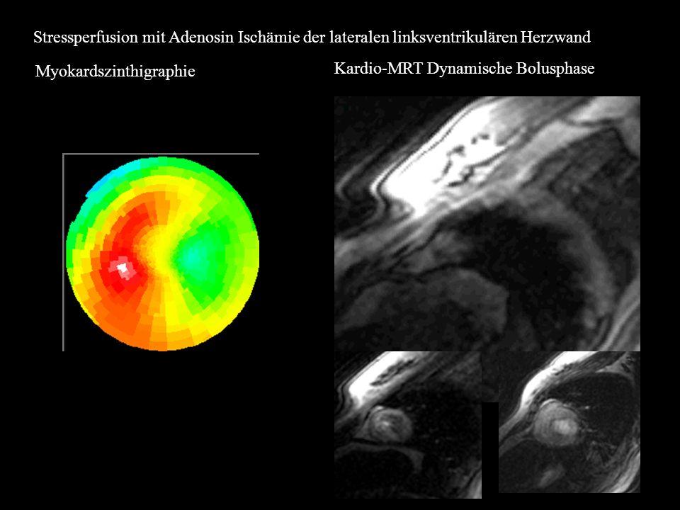 Stressperfusion mit Adenosin Ischämie der lateralen linksventrikulären Herzwand