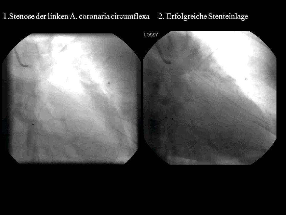 1. Stenose der linken A. coronaria circumflexa 2