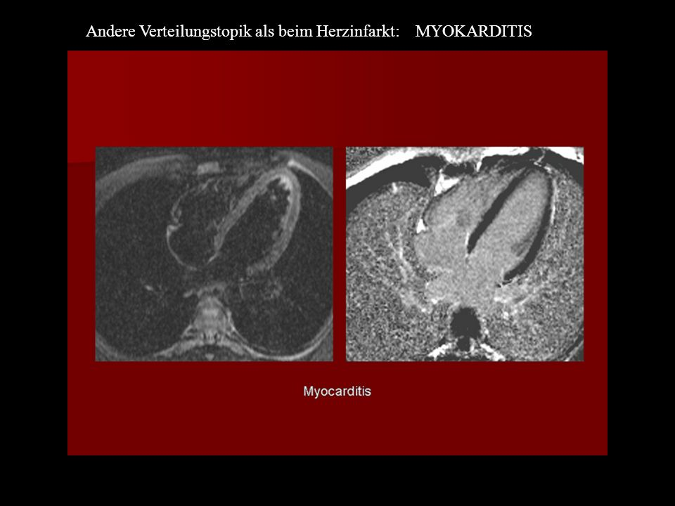 Andere Verteilungstopik als beim Herzinfarkt: MYOKARDITIS