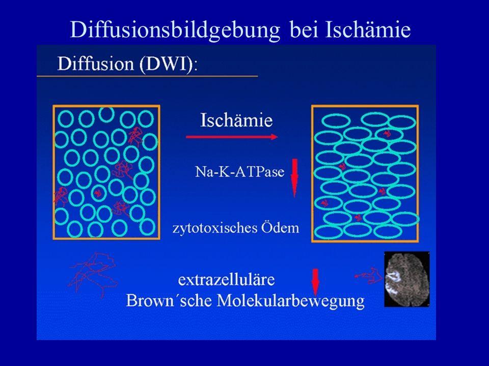 Diffusionsbildgebung bei Ischämie