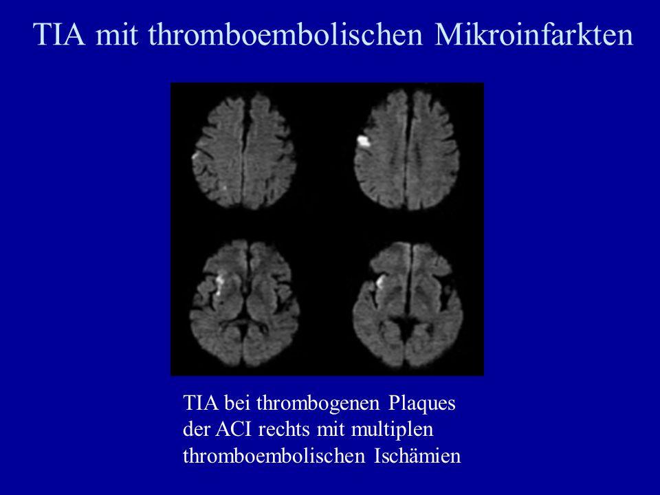 TIA mit thromboembolischen Mikroinfarkten
