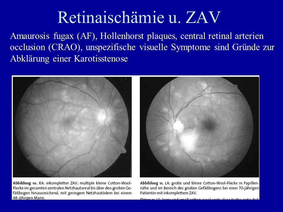Retinaischämie u. ZAV