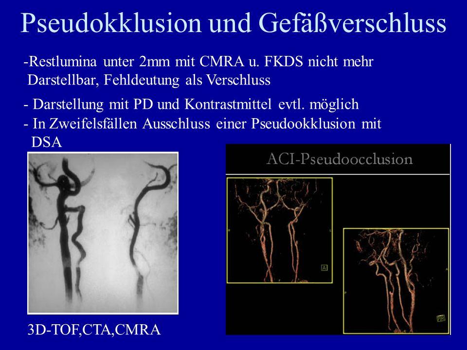 Pseudokklusion und Gefäßverschluss