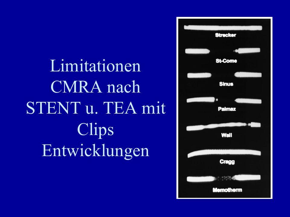 Limitationen CMRA nach STENT u. TEA mit Clips Entwicklungen
