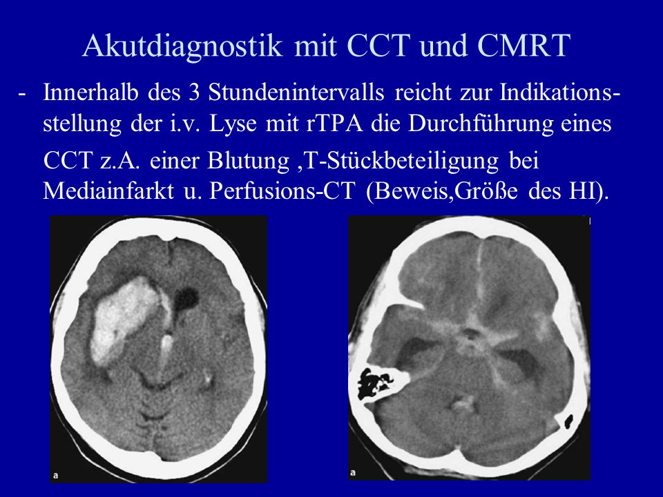 Akutdiagnostik mit CCT und CMRT