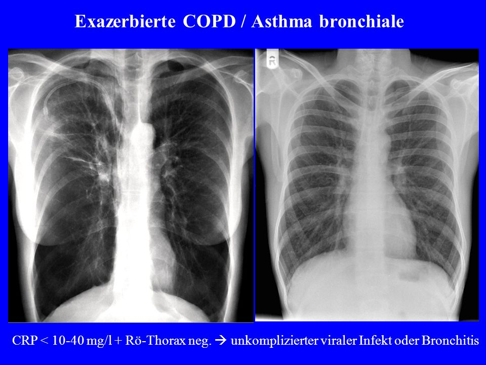 Exazerbierte COPD / Asthma bronchiale