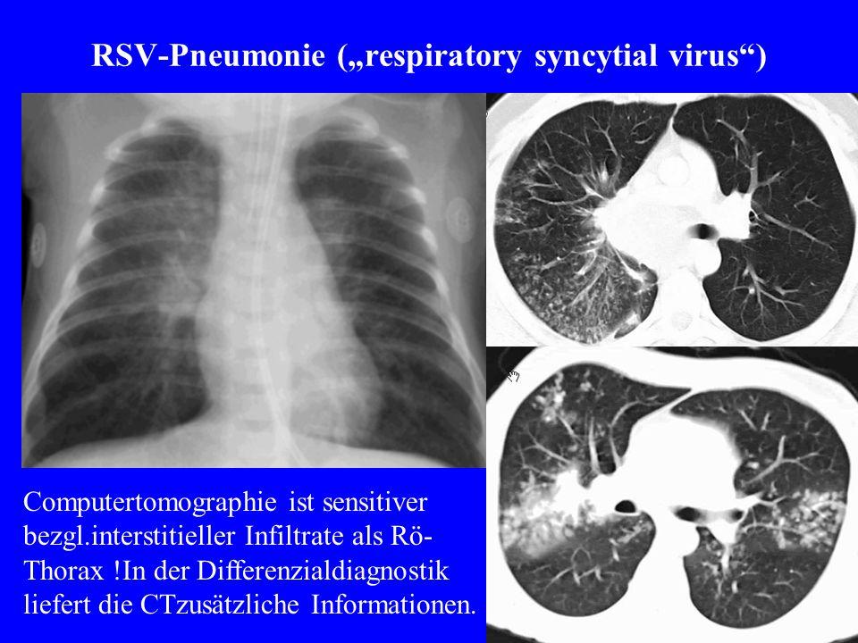 "RSV-Pneumonie (""respiratory syncytial virus )"