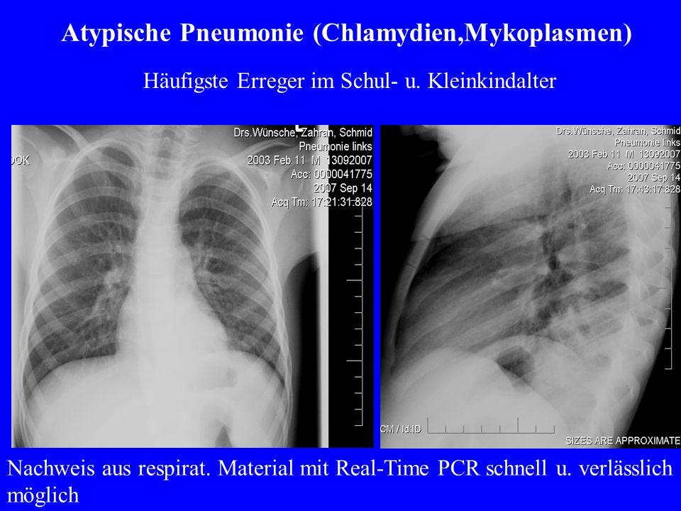 Atypische Pneumonie (Chlamydien,Mykoplasmen)