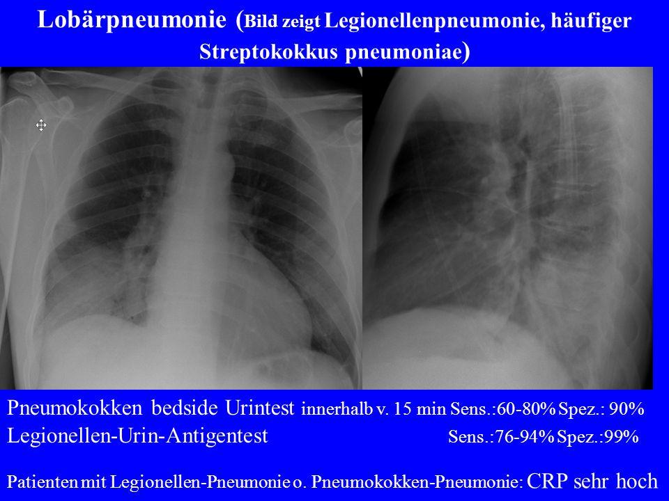 Lobärpneumonie (Bild zeigt Legionellenpneumonie, häufiger Streptokokkus pneumoniae)