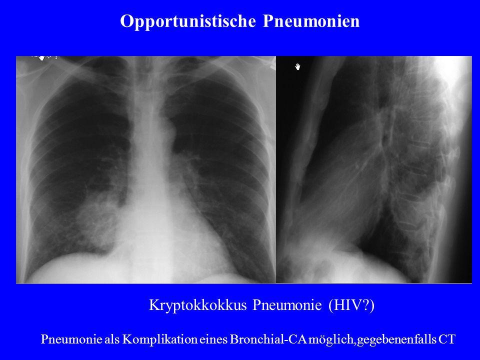 Opportunistische Pneumonien