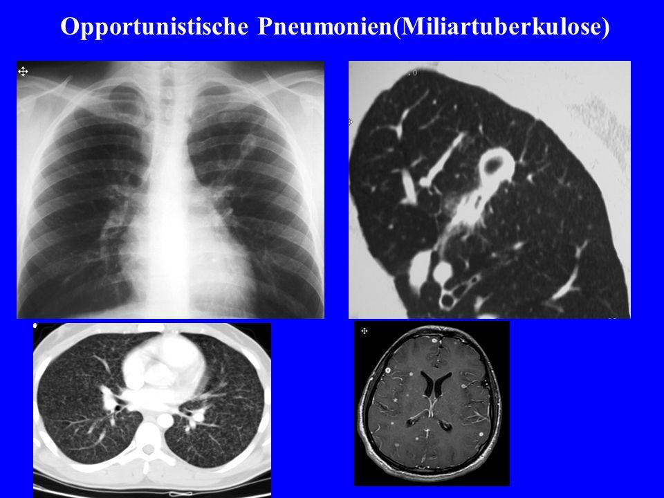Opportunistische Pneumonien(Miliartuberkulose)