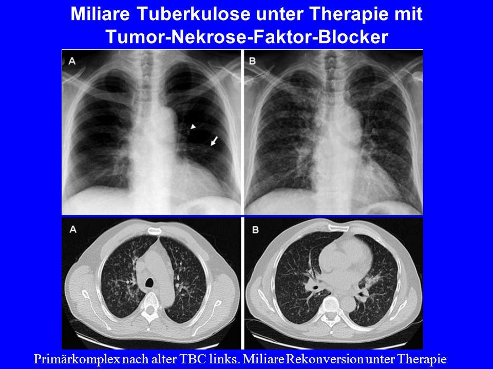 Miliare Tuberkulose unter Therapie mit Tumor-Nekrose-Faktor-Blocker