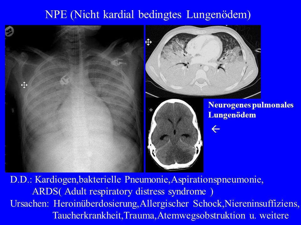 NPE (Nicht kardial bedingtes Lungenödem)