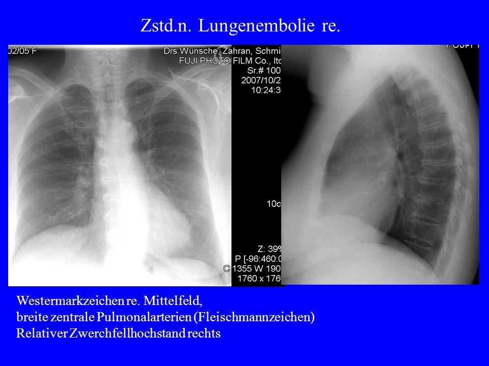 Zstd.n. Lungenembolie re.