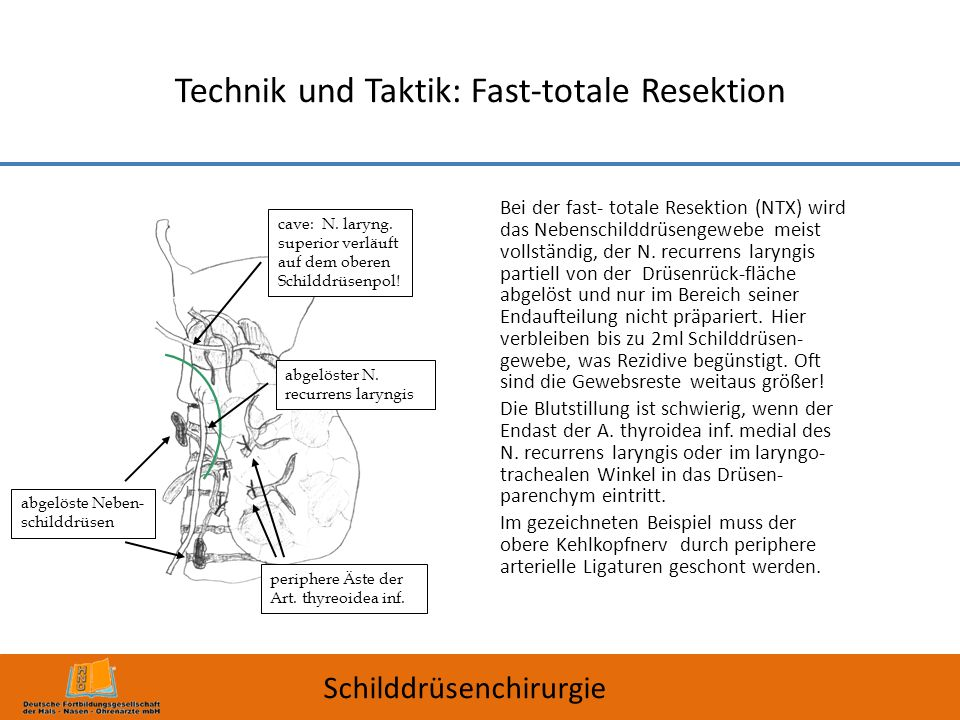 Technik und Taktik: Fast-totale Resektion