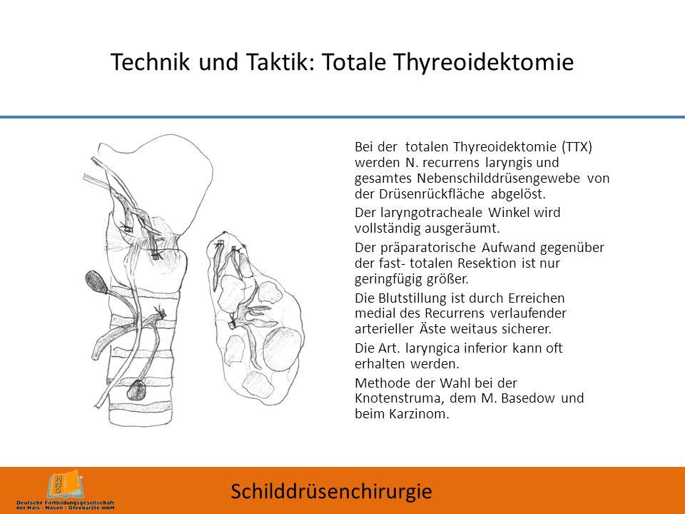 Technik und Taktik: Totale Thyreoidektomie