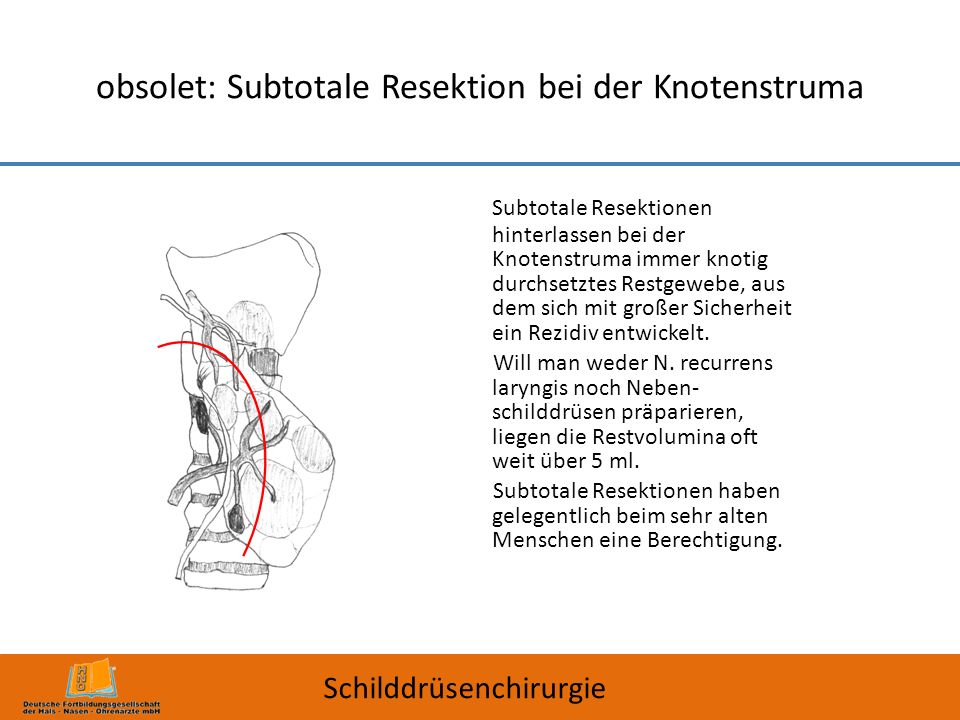 obsolet: Subtotale Resektion bei der Knotenstruma
