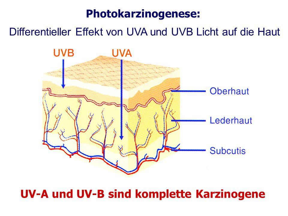 UV-A und UV-B sind komplette Karzinogene