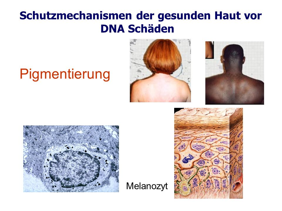 Schutzmechanismen der gesunden Haut vor DNA Schäden