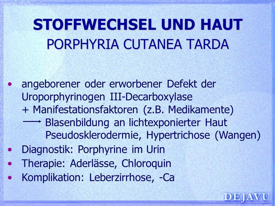 STOFFWECHSEL UND HAUT PORPHYRIA CUTANEA TARDA