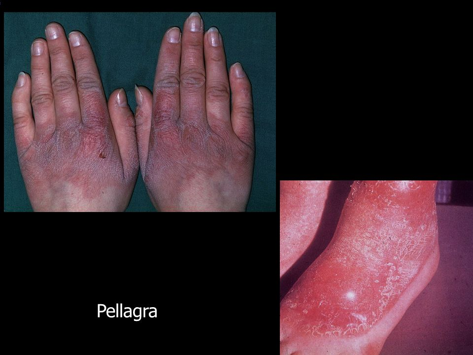 Pellagra LO_ID: 1587 ICD10: L43990 Diagnose(n):