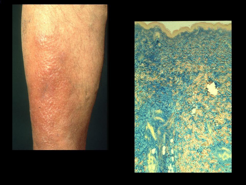 LO_ID: 1587 ICD10: L43990 Diagnose(n): * Lichen ruber o. n. A.