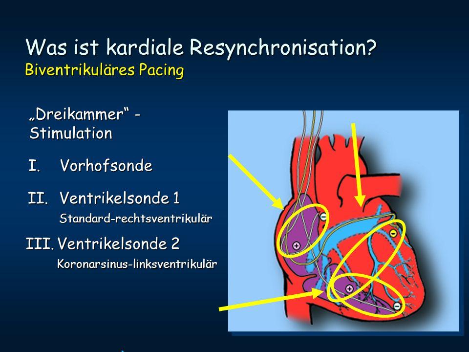 Was ist kardiale Resynchronisation Biventrikuläres Pacing