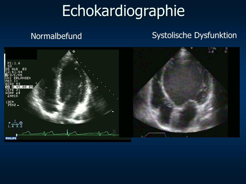 Echokardiographie Normalbefund Systolische Dysfunktion