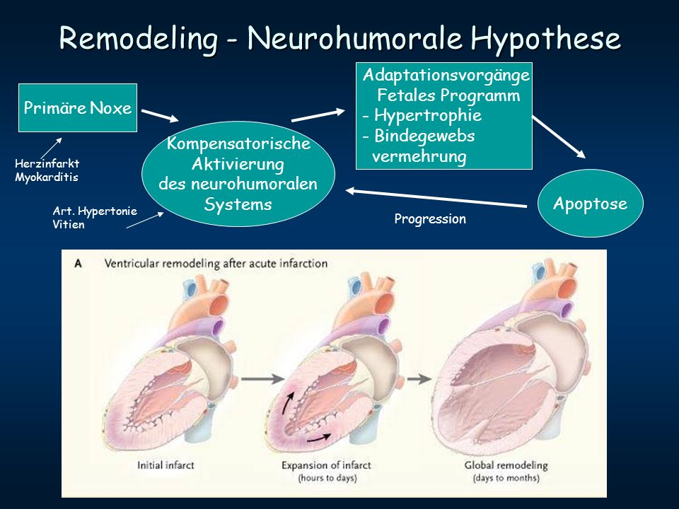Remodeling - Neurohumorale Hypothese