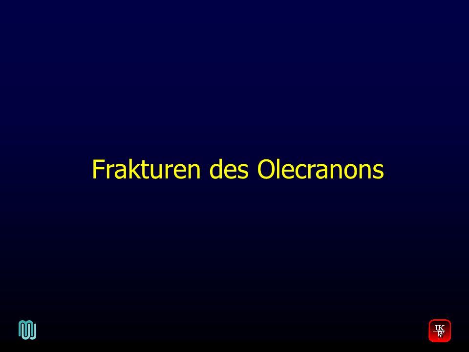 Frakturen des Olecranons