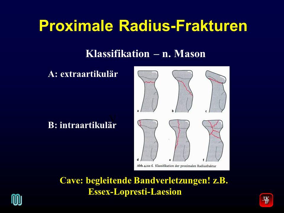 Proximale Radius-Frakturen Klassifikation – n. Mason