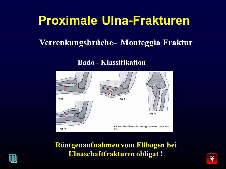 Proximale Ulna-Frakturen