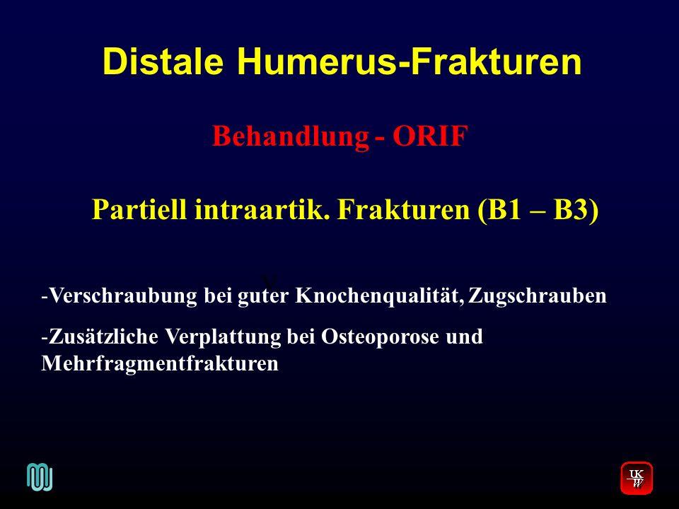 Distale Humerus-Frakturen Partiell intraartik. Frakturen (B1 – B3)