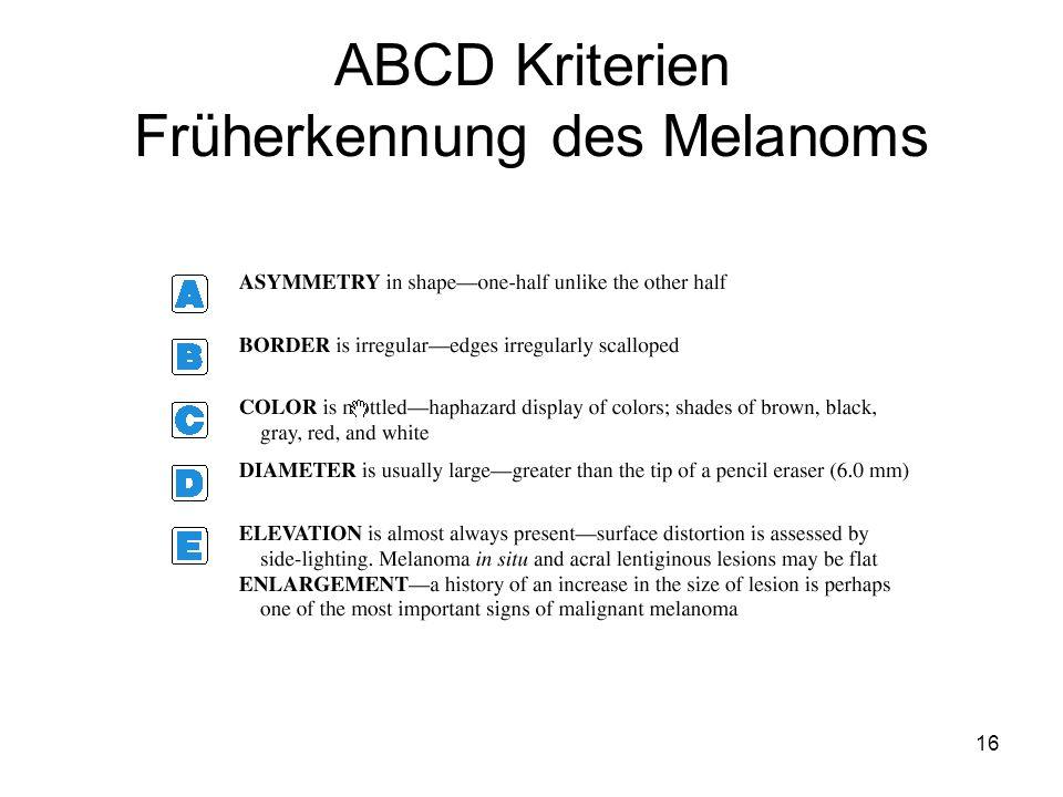 ABCD Kriterien Früherkennung des Melanoms