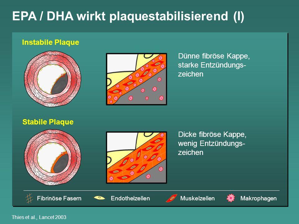 EPA / DHA wirkt plaquestabilisierend (I)