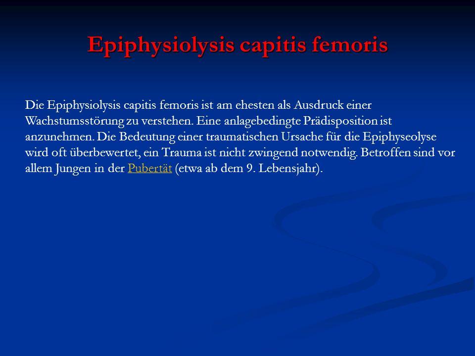 Epiphysiolysis capitis femoris