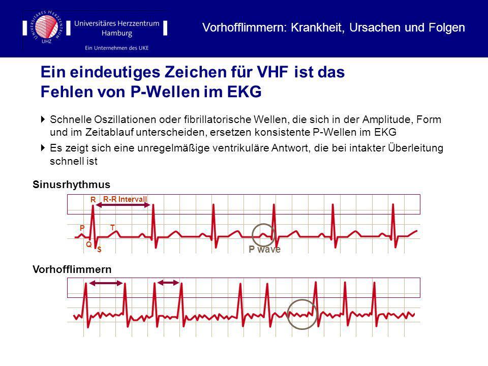 Ein eindeutiges Zeichen für VHF ist das Fehlen von P-Wellen im EKG