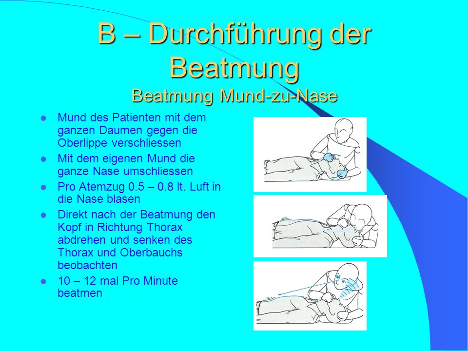 B – Durchführung der Beatmung Beatmung Mund-zu-Nase