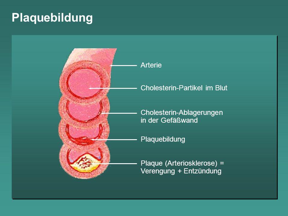 Plaquebildung Arterie Cholesterin-Partikel im Blut