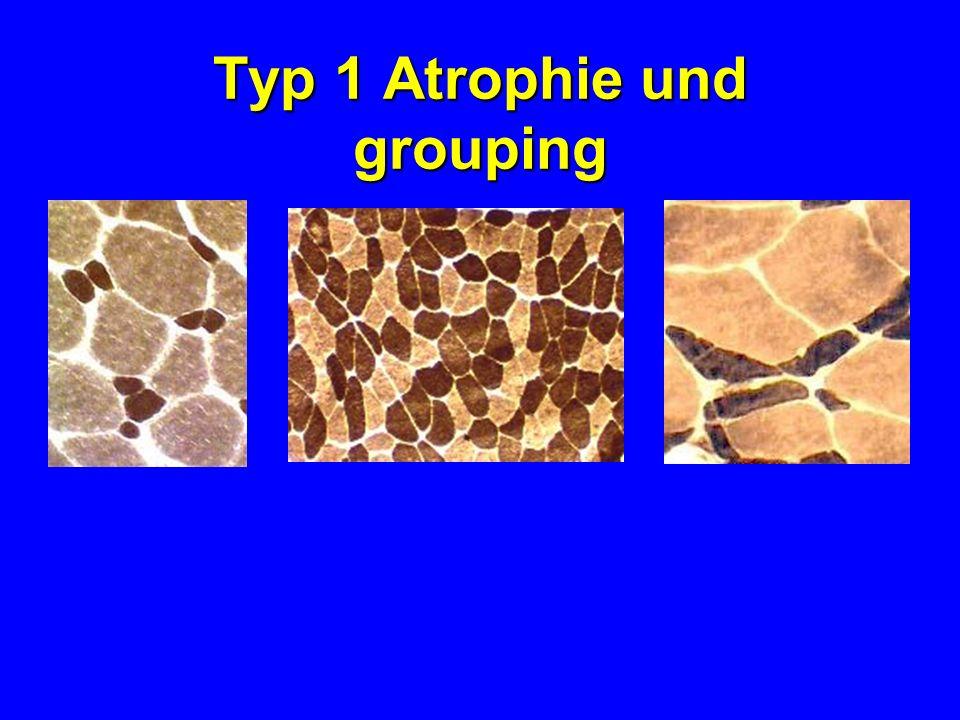 Typ 1 Atrophie und grouping