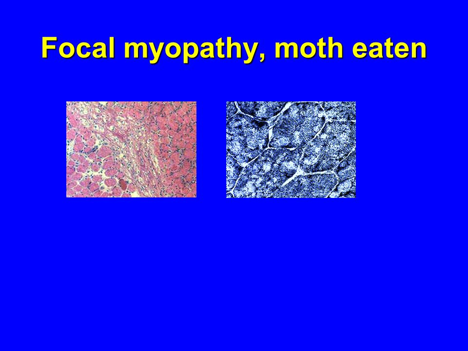 Focal myopathy, moth eaten