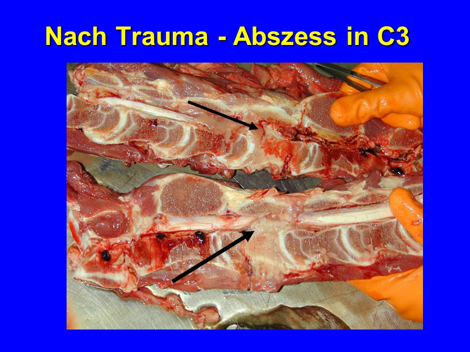 Nach Trauma - Abszess in C3