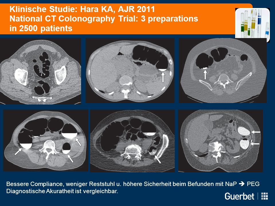 Klinische Studie: Hara KA, AJR 2011 National CT Colonography Trial: 3 preparations in 2500 patients