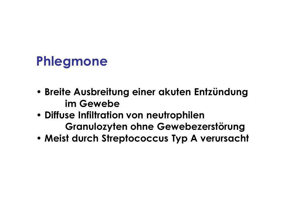 Phlegmone Breite Ausbreitung einer akuten Entzündung im Gewebe