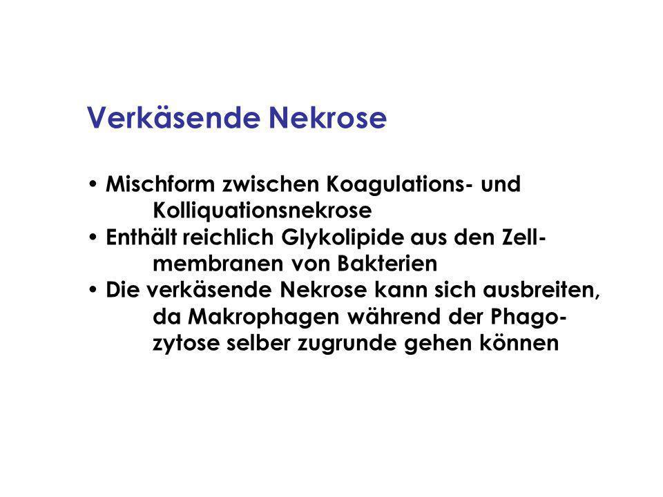 Verkäsende Nekrose Mischform zwischen Koagulations- und