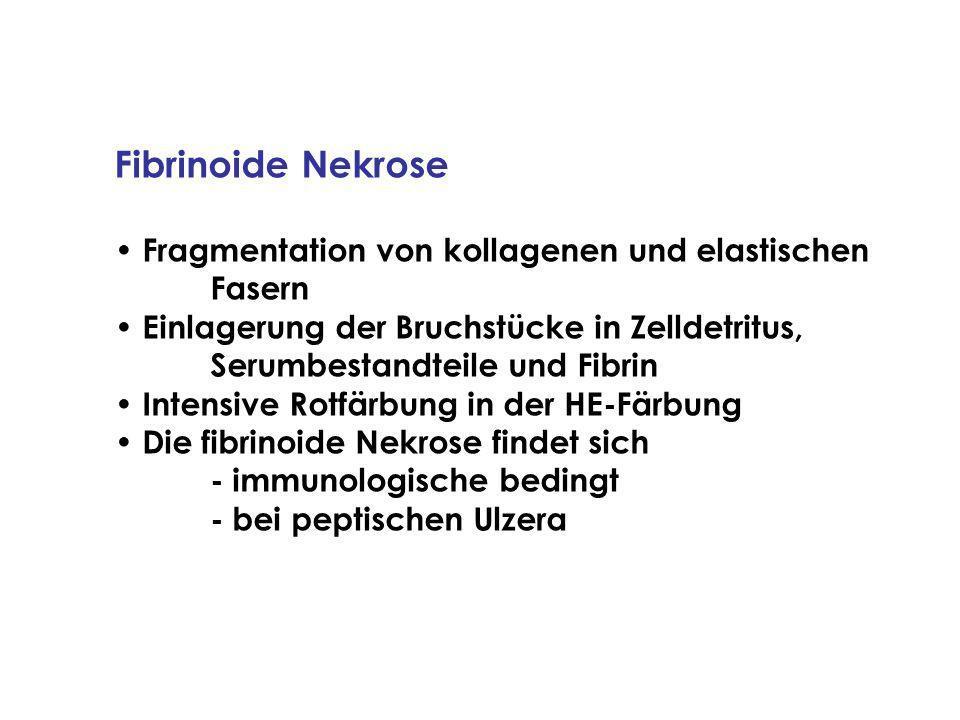 Fibrinoide Nekrose Fragmentation von kollagenen und elastischen Fasern