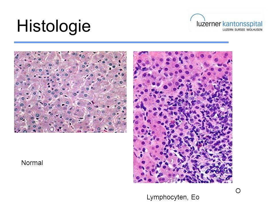 Histologie Normal O Lymphocyten, Eo