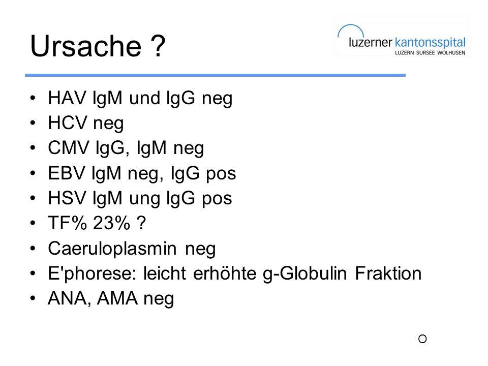 Ursache HAV IgM und IgG neg HCV neg CMV IgG, IgM neg