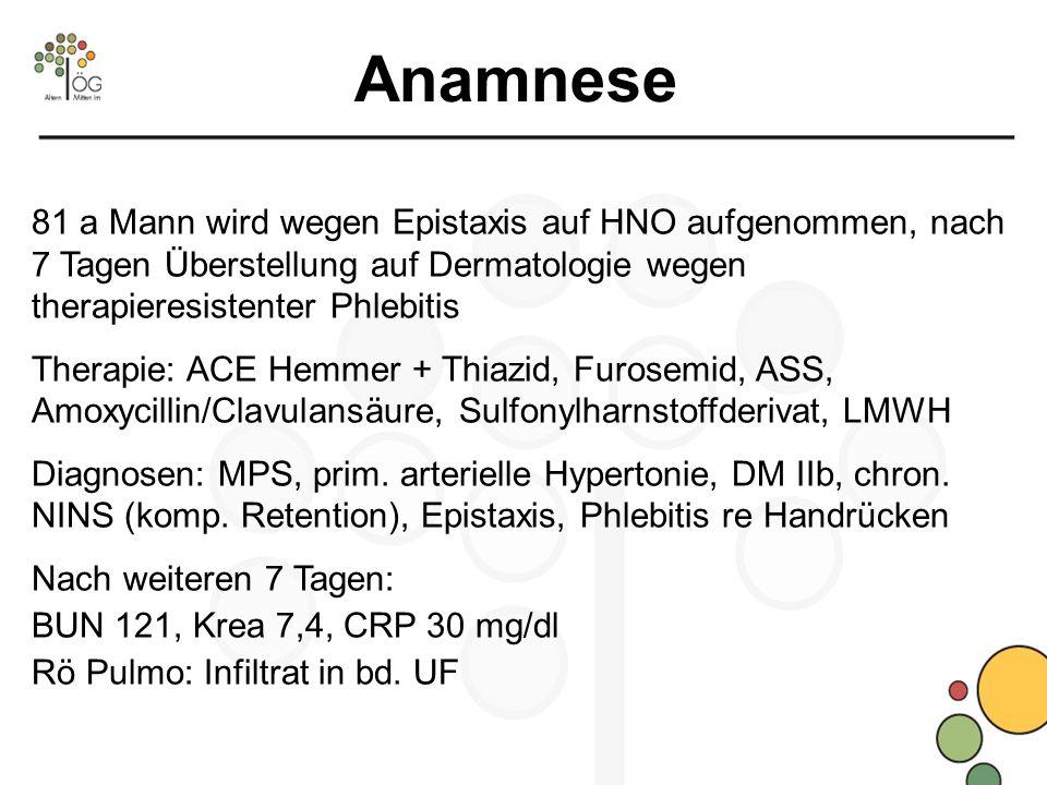 Anamnese 81 a Mann wird wegen Epistaxis auf HNO aufgenommen, nach 7 Tagen Überstellung auf Dermatologie wegen therapieresistenter Phlebitis.
