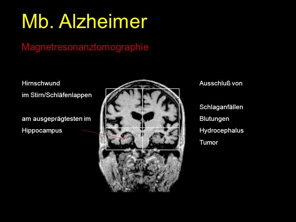 Mb. Alzheimer Magnetresonanztomographie Hirnschwund